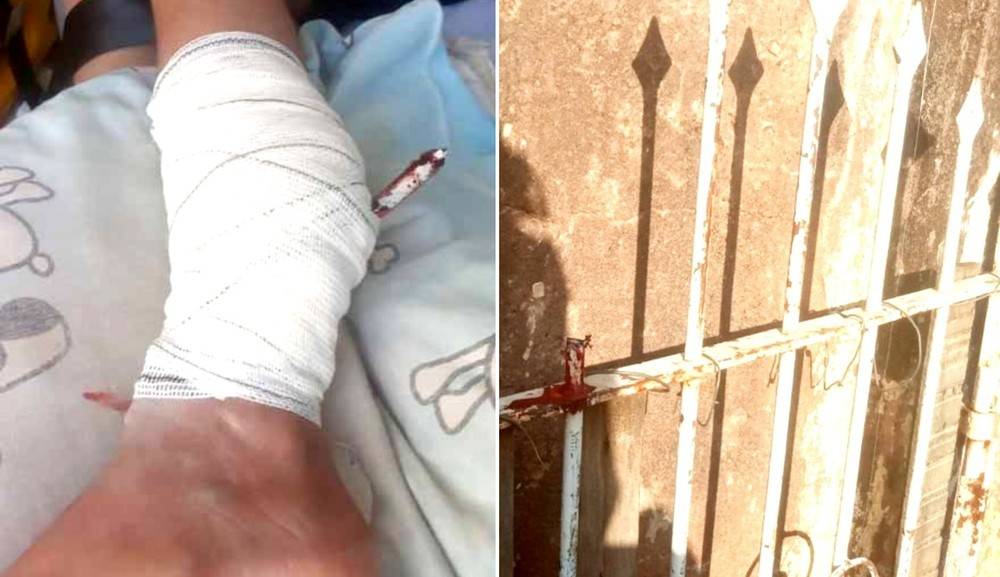 Menino de 11 anos cai em portão ao tentar pegar pipa e fica com lança de ferro cravada na perna